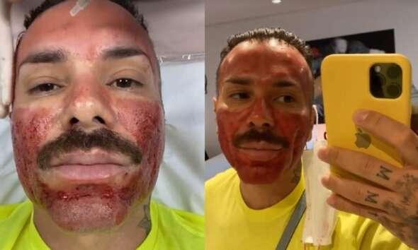 Matheus Mazzafera mostra procedimento que deixa rosto em carne viva